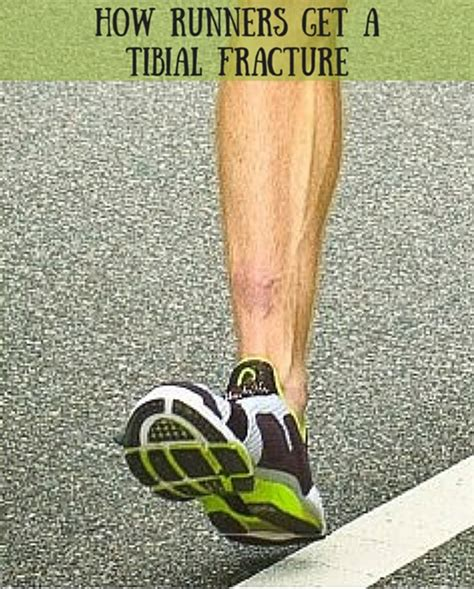 best running shoes for stress fractures stress fractures of the tibia in runners run forefoot