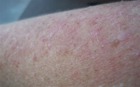rash on pin lupus rashes and lesions on