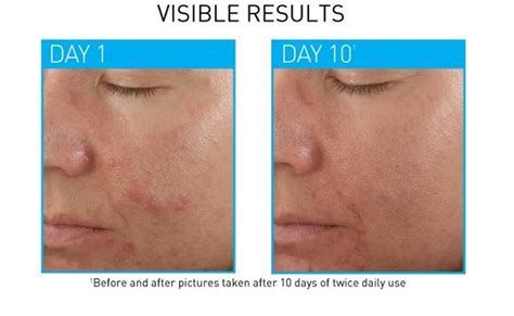 best acne spot treatment top 10 best acne spot treatment from the drugstore favful