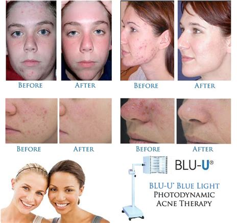 dermatology blue light treatment orleans dermatology and laser therapies photodynamic