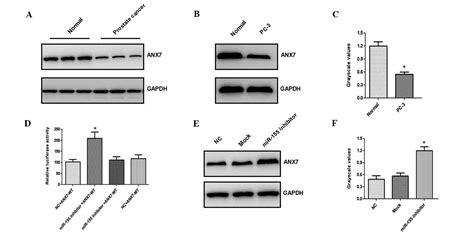 bcas2 promotes prostate cancer cells proliferation by microrna 155 promotes the proliferation of prostate cancer
