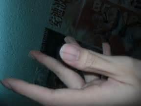 line on fingernail black line on fingernail