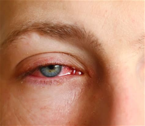 how to get rid of pink eye fast overnight at home