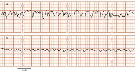 pattern of heart rate variability intrapartum assessment obgyn key