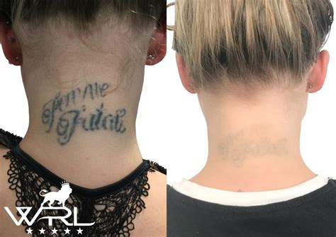 nhs tattoo removal removal neck whiteroom laser ltd