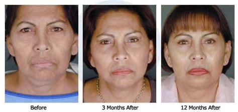 age reducing makeovers estiramiento facial patient 26 sd cirug 237 a pl 225 stica