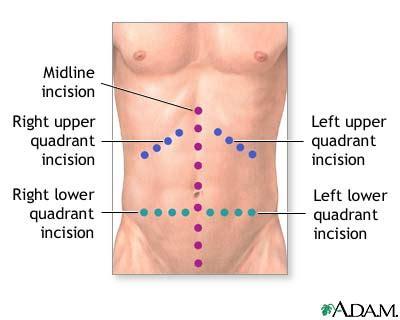 abdominal exploration causes symptoms treatment abdominal exploration