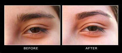 photos of men brazilian waxing before and after male brazilian waxing before and after