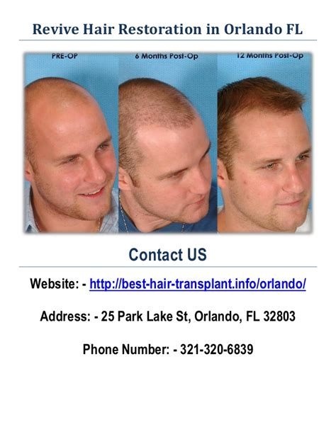 best hair transplant doctors in america hair transplant orlando om hair