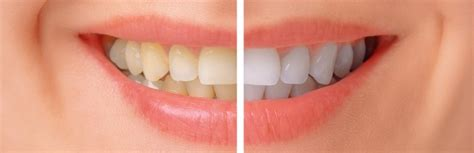 teeth whitening  south east london professional teeth