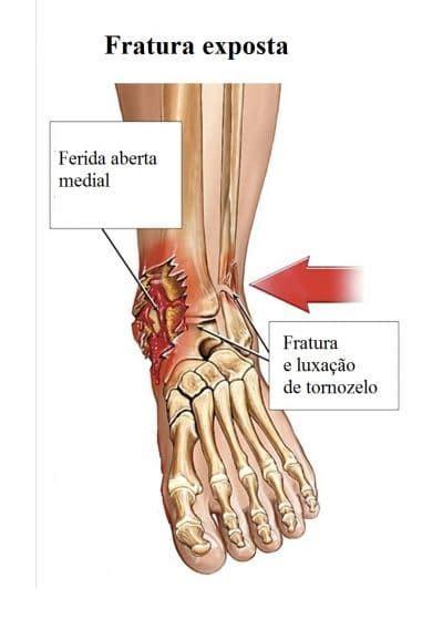dolore malleolo interno fratura da f 237 bula sintomas fisioterapia e reabilita 231 227 o