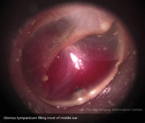 ear tumor glomus tumors tympanicum jugulare ear surgery information center