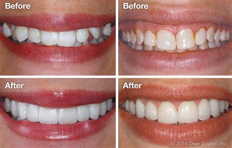 can porcelain veneers fix crooked teeth dentalplans