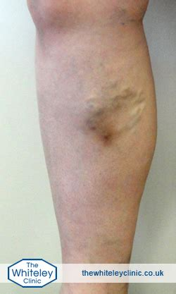 phlebitis treatment the whiteley clinic