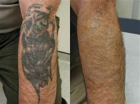 body panting celebrity dallas tattoo removal