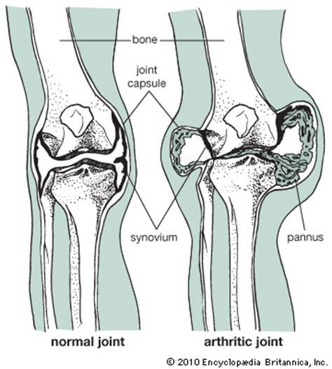 résumé definition arthritis normal and arthritic joint encyclopedia