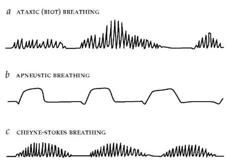 breathing pattern video ventilatory control during wakefulness and sleep part 2