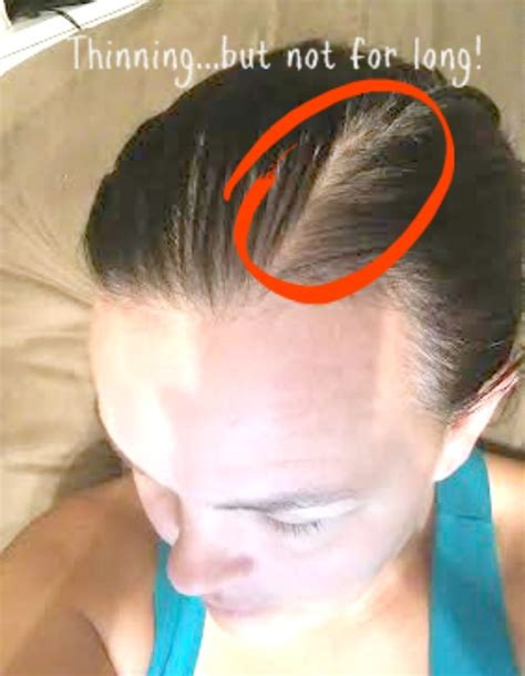 womans hair thinning on sides thicker fuller hair with rogaine for women