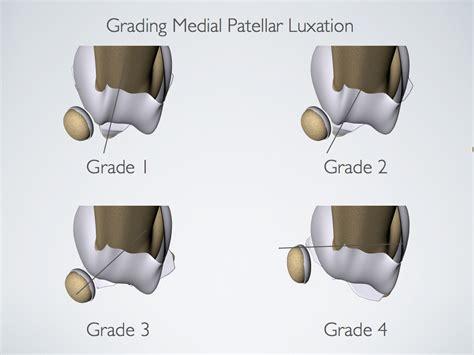 patellar luxation trochlear prosthesis part 2 the pathogenesis of patellar luxation torrington