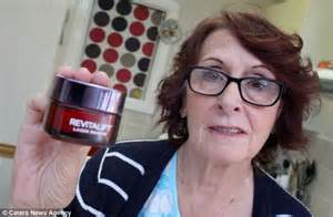 pics of 66 yearold women woman suffers blistered face after using l oreal anti