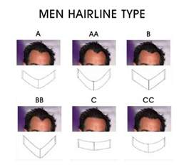 types of hair lines men hairline types