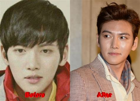 lee seung gi ji chang wook famous plastic surgery the ji chang wook plastic surgery