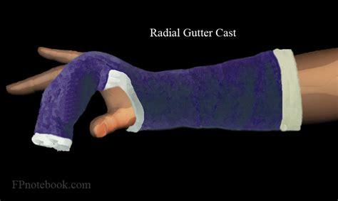 arm gutter splint radial gutter cast