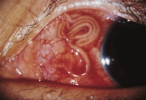 Anesthesia Coffee Detox by Human Subconjunctival Infection Of Macacanema Formosana