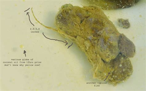 Galerry pin worms in humans stools