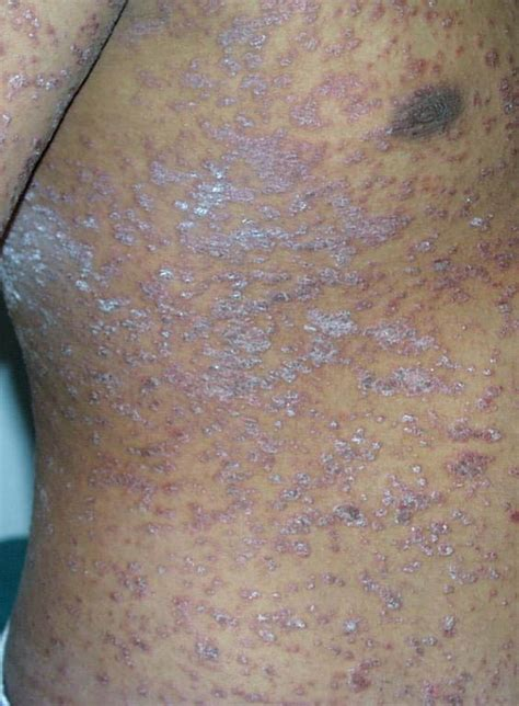 christmas tree pattern in dermatology christmas tree pattern dermatology finasteride treatment