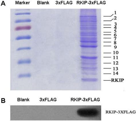 anti flag m2 magnetic separation of rkip interacting proteins with anti flag m2