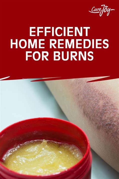 25 best ideas about home remedies for burns on
