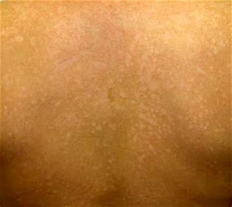 Wood S L Fungal Infection by The Dynamic Skin Care October 2009
