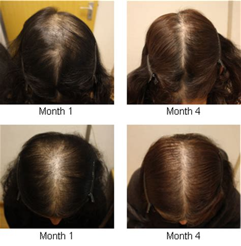 female pattern hair loss pictures female pattern baldness information image search results