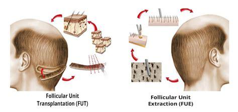 fut hong kong hair transplant fut vs fue hair transplant a fair comparison hair section