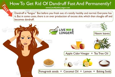 how to get rid of dandruff how to get rid of dandruff fast and permanently