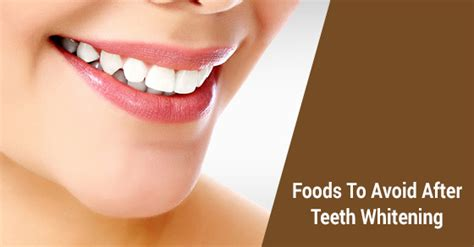 7 Foods To Avoid For Whiter Teeth by 5 Foods To Avoid After A Teeth Whitening David Silberman Dds