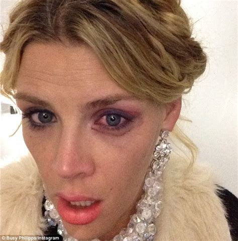 hot hit in the eye busy philipps sports a black eye after a playful day on