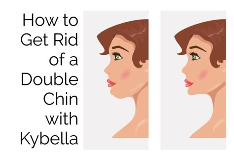 how to get rid of a double chin cure for sure how to get rid of a double chin with kybella