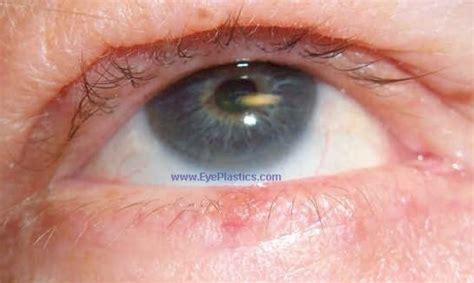 eyelid tumor cosmetic eyelid surgery oculofacial oculo surgeon locatetest