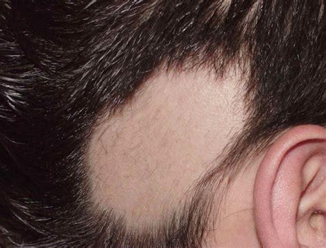 infeccion cuero cabelludo el recrecimiento cabello solamente puede darse si los