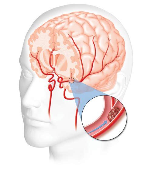 a stroke shocks seizures strokes cpr certification aid class