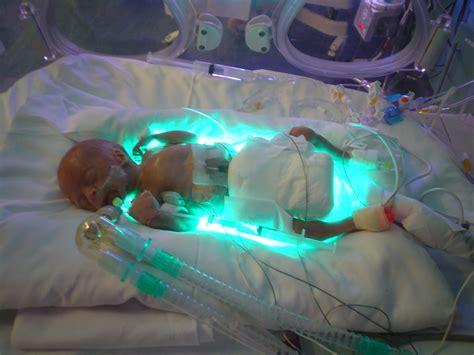 preemie car bed patent ductus arteriosis preemieworld