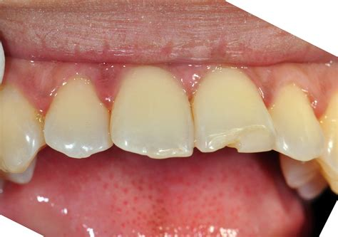 Part Fiiling 3 aesthetic fillings with resin composite 171 prestige