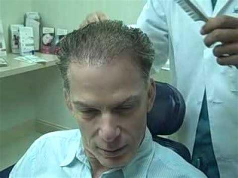 best hair transplant surgeon dr jeffrey epstein plastic surgeon dr jeffrey epstein fue hair transplant