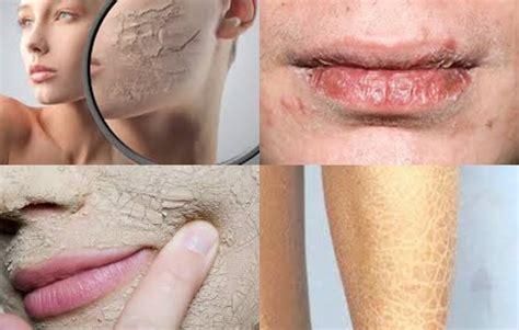 Sabun Muka Oilum cara menyiasati kulit kering saat berpuasa