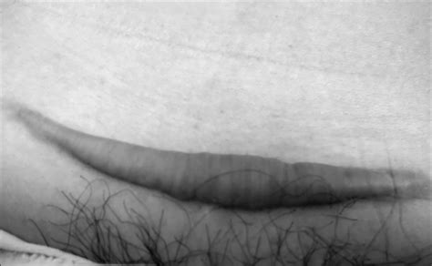 keloid scar after c section therapeutic results and safety of postoperative