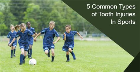 common types  tooth injuries  sports oakville