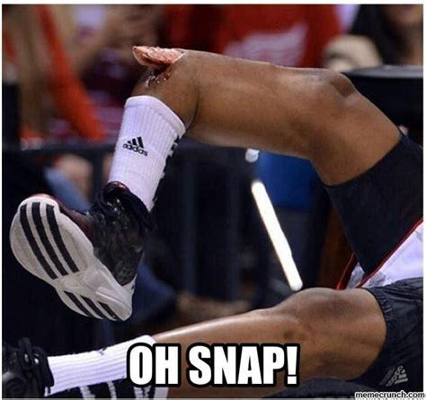 Oh Snap Meme - oh snap kevin ware broken leg