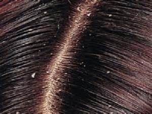 Home remedies for dandruff herbal beauty tips